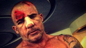 Incidenti attori feriti